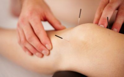 Técnicas prácticas y eficaces en acupuntura